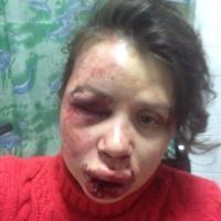Состояние пострадавшей от избиения журналистки Татьяны Черновол средней степени тяжести