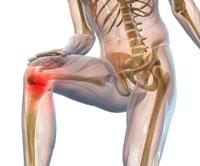Что надо знать о болезнях суставов