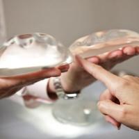 Пластика груди: ликбез для интересующихся